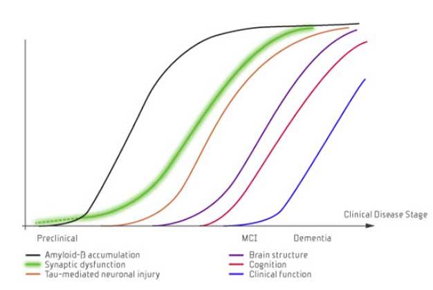 Alzheimers sjukdom karakteriseras av beta-amyloidplack, neurofibrillära tangles och synapsförlust (4)