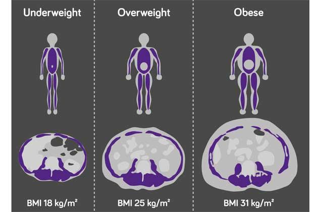 Illustration över tre manliga patienter med olika BMI och likvärdig mängd muskulär muskelmassa i en tvärsnittarea. Anpassad från Prado CM et al, 2016